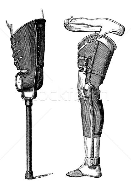 Artificial Legs, vintage engraving Stock photo © Morphart