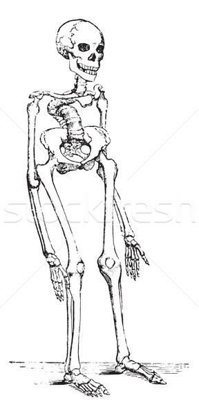 Skeleton deformed by rickets which deflected the spinal column, vintage engraving. Stock photo © Morphart
