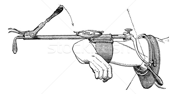 Charriere device, vintage engraving. Stock photo © Morphart