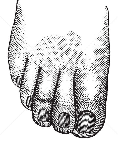 Faulty position of the big and second toe, vintage engraving. Stock photo © Morphart