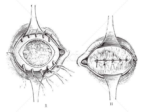 Removal of the anterior segment of the eye with total staphyloma Stock photo © Morphart
