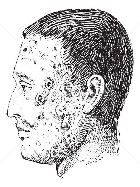Insan yüz enfekte bağbozumu oyma eski Stok fotoğraf © Morphart