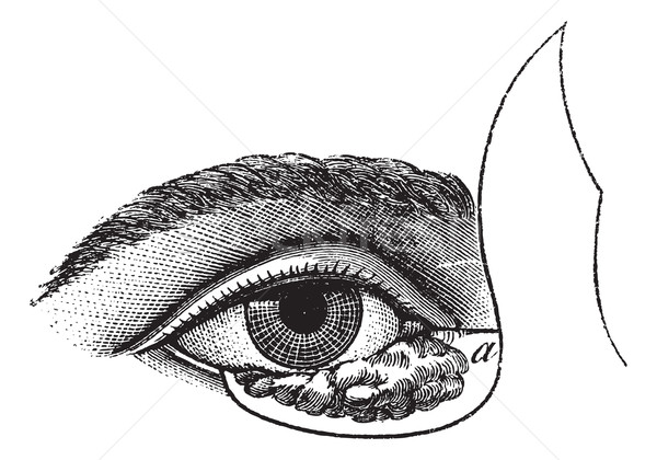 Fig. 177. Blepharoplasty by the method of Blasius, vintage engra Stock photo © Morphart