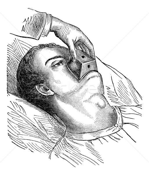 Application of a cone chloroform, vintage engraving. Stock photo © Morphart