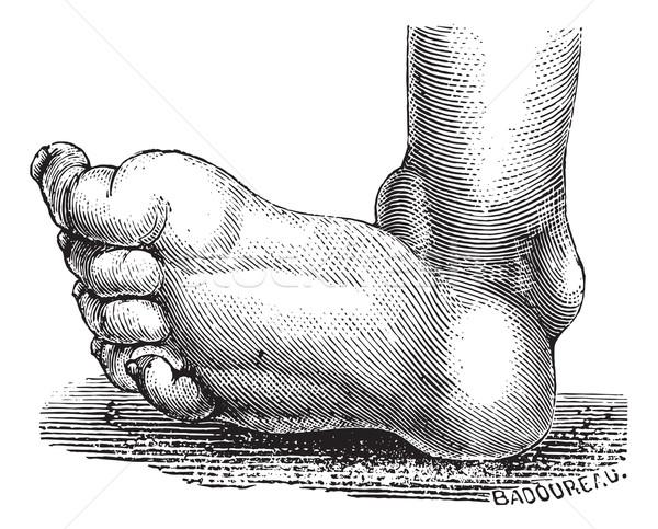 Clubfoot or congenital talipes equinovarus, vintage engraving. Stock photo © Morphart