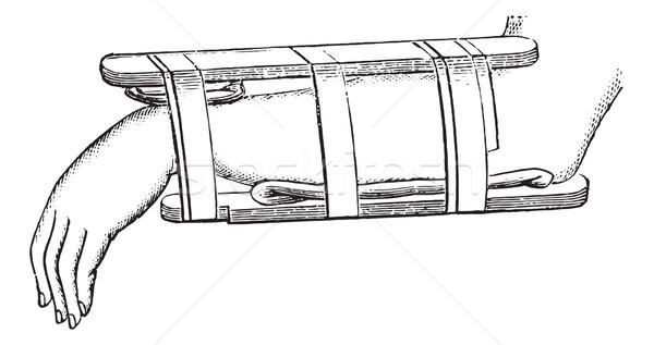 Nelaton device for fractures of the distal radius, vintage engra Stock photo © Morphart