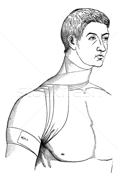 Bandage crosses the neck and armpit, vintage engraving. Stock photo © Morphart