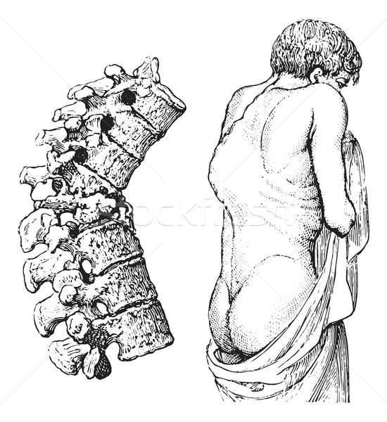 Betegség klasszikus gravírozott illusztráció gyógyszer szótár Stock fotó © Morphart