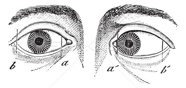 Esotropia of the left eye, vintage engraving. Stock photo © Morphart