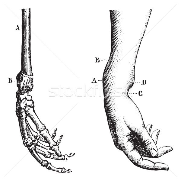 Fracture of the lower extremity of the radius, vintage engraving Stock photo © Morphart