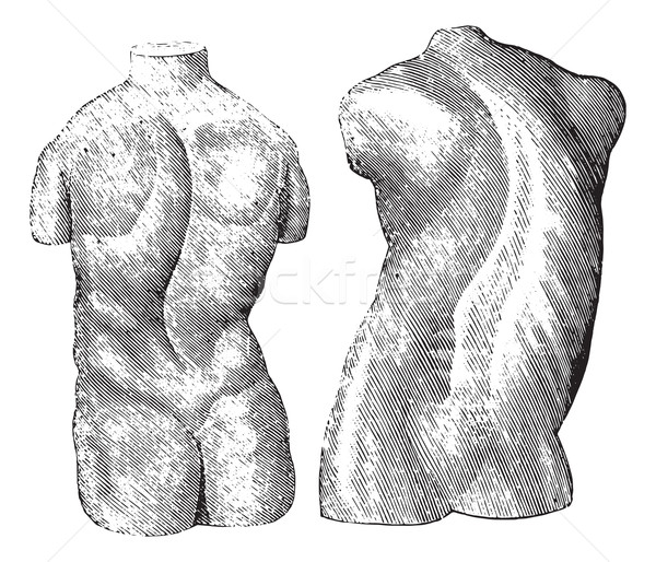 Cast of two varieties of scoliosis, vintage engraving. Stock photo © Morphart