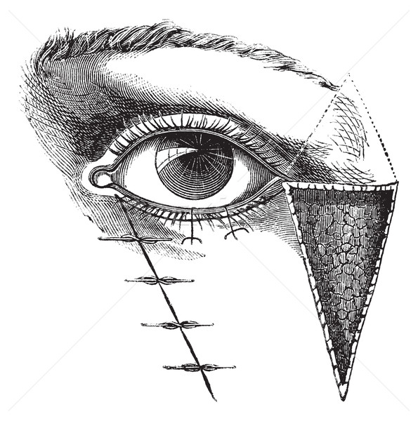 Stock photo: Fig. 180. Blepharoplasty by the method of Dieffembach, vintage e