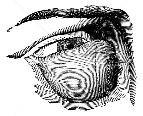 Highly Developed Lacrimal Tumor, vintage engraving Stock photo © Morphart