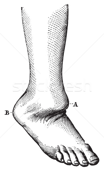 Dislocation of the foot back, vintage engraving. Stock photo © Morphart