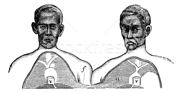 Siamese twins. V. Vena cava. f. Upper limit of the common axis,  Stock photo © Morphart