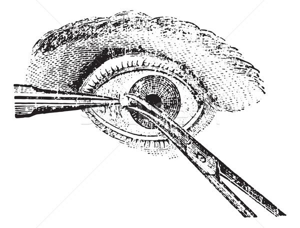 Strabismus surgery, vintage engraving. Stock photo © Morphart