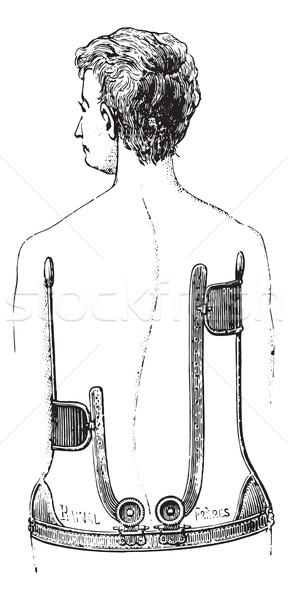 A gear unit against scoliosis, vintage engraving Stock photo © Morphart
