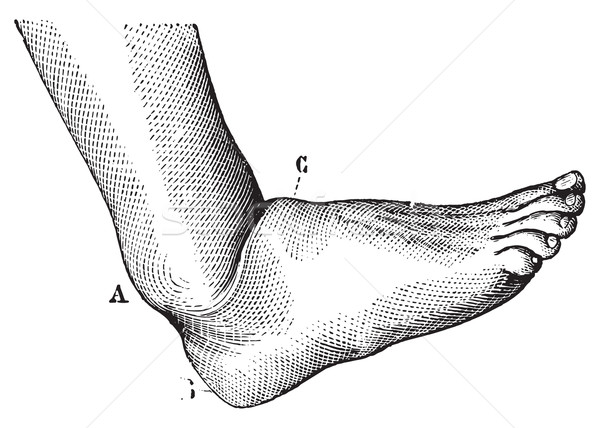 Dislocation of the foot forward, vintage engraving. Stock photo © Morphart