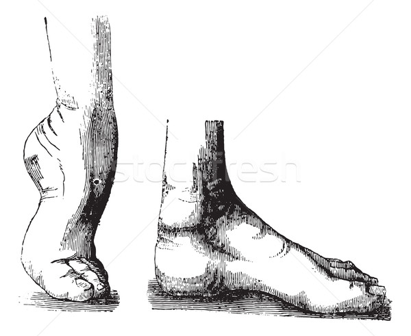 Clubfoot equine before and after the operation, vintage engravin Stock photo © Morphart