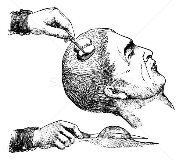 Lupa cuero cabelludo vintage grabado ilustración medicina Foto stock © Morphart