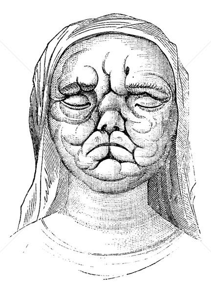 Leprosy or Hansen's Disease, vintage engraving Stock photo © Morphart
