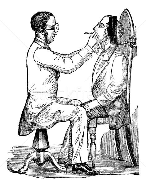 Klasszikus vésés mutat orvos néz száj Stock fotó © Morphart