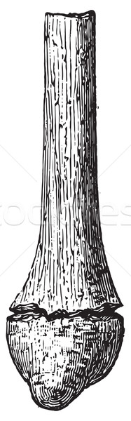 Fractured fibula when removed, vintage engraving. Stock photo © Morphart