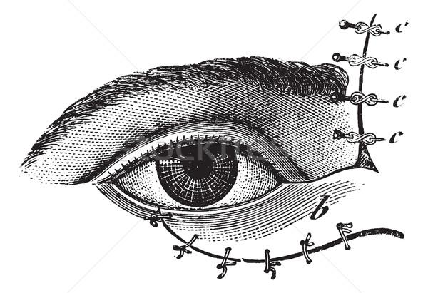 Fig. 178. Blepharoplasty by the method of Blasius, vintage engra Stock photo © Morphart