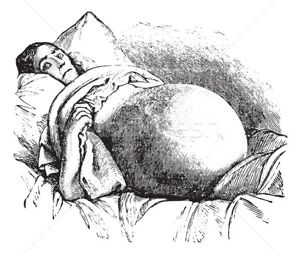 Ovariotomy, vintage engraving. Stock photo © Morphart