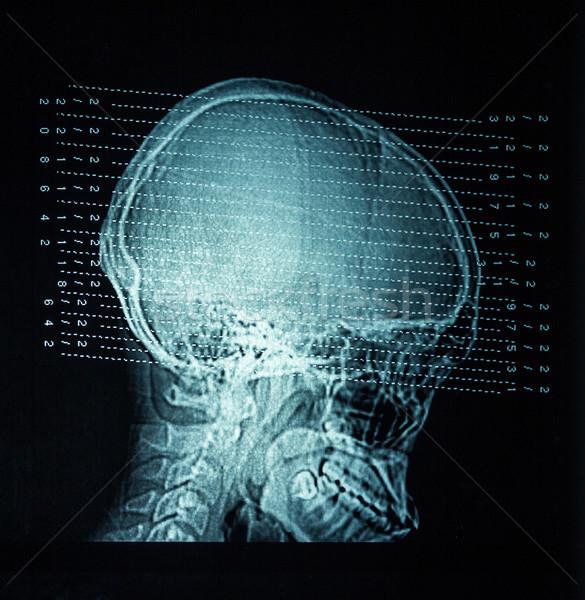 Stockfoto: Xray · hoofd · iets · medische · lichaam · ziekenhuis
