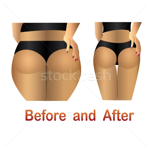 Körper Cellulite glatte Haut Fett Bauch Textur Stock foto © naum
