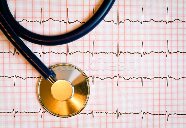 Stetoskop kardiyogram diyagram tıp veri Stok fotoğraf © naumoid