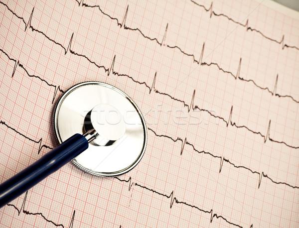 стетоскоп кардиограмма диаграмма медицина данные Сток-фото © naumoid