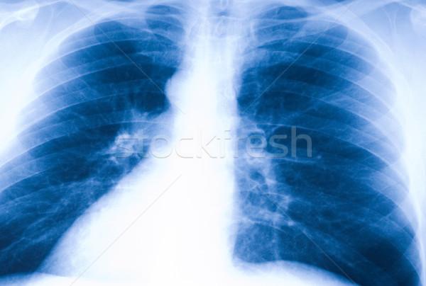 X-ray photo of human lungs Stock photo © Nejron