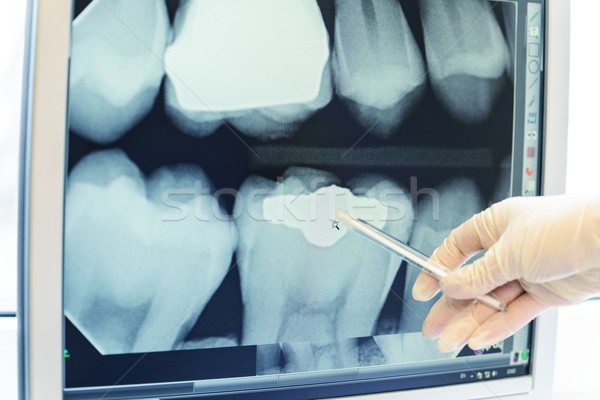 Hand in glove showing on teeth x-ray Stock photo © Nejron