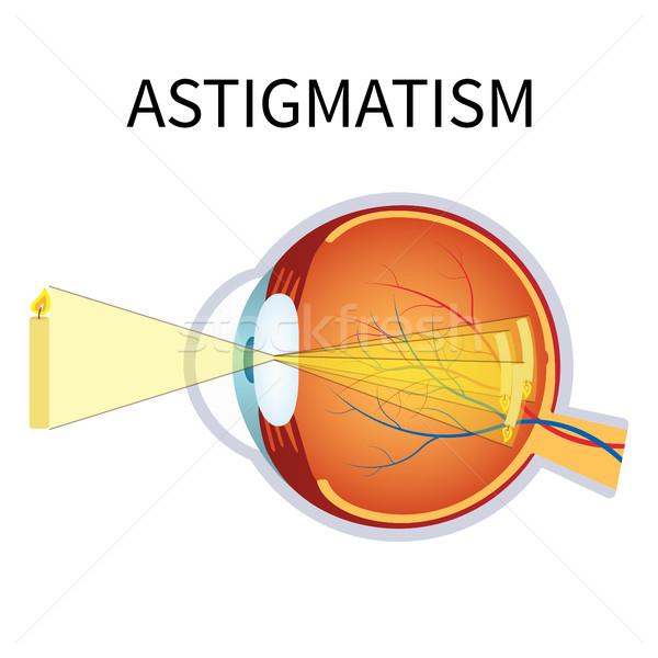 Ilustracja zamazany wizji anatomii oka przekrój Zdjęcia stock © Neokryuger