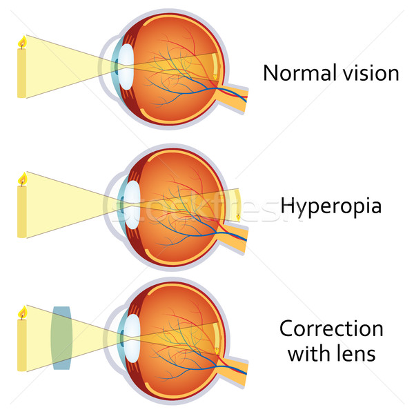 Hyperopia corrected by a plus lens. Stock photo © Neokryuger