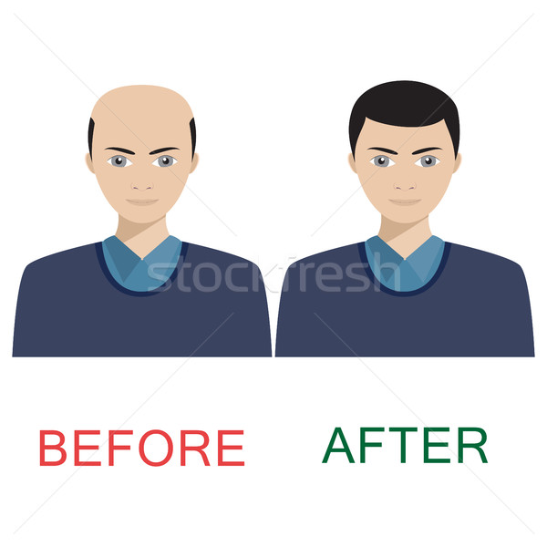 Stock photo: Man before and after hair treatment.