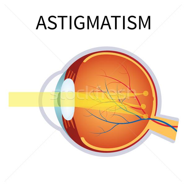 зрение проблема расплывчатый видение иллюстрация анатомии Сток-фото © Neokryuger
