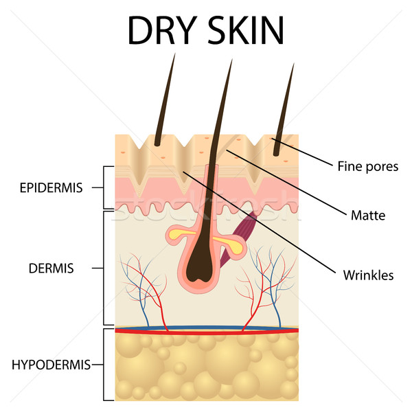 Illustration of The layers of dry skin Stock photo © Neokryuger