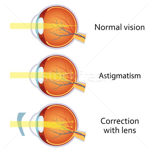 レンズ 視力 問題 ぼやけた ビジョン 解剖 ストックフォト © Neokryuger