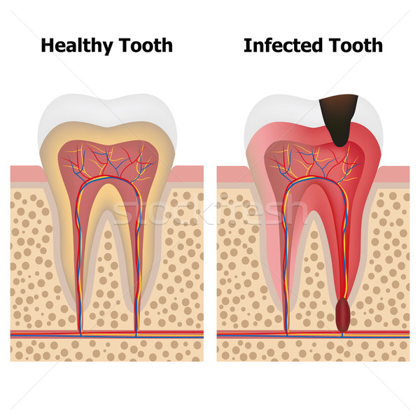 Pulpitis and Healthy tooth Stock photo © Neokryuger