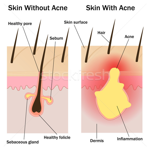 Skin with and without acne Stock photo © Neokryuger