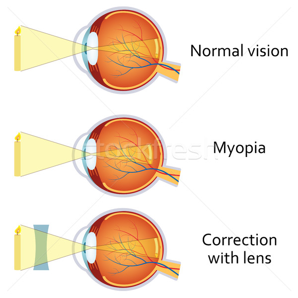 Myopia and myopia corrected by a minus lens. Stock photo © Neokryuger
