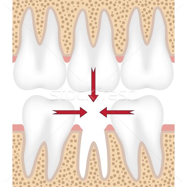 иллюстрация отсутствующий зубов зубов движущихся Сток-фото © Neokryuger