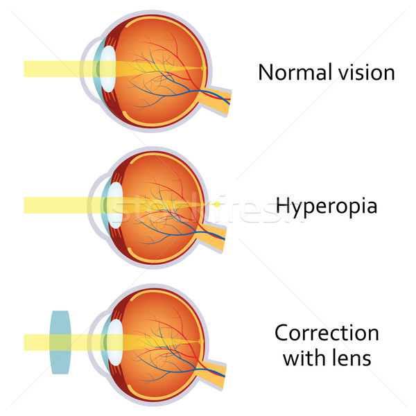 Hyperopia corrected by a plus lens Stock photo © Neokryuger