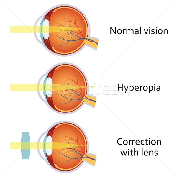Lenti occhi visione medici Foto d'archivio © Neokryuger