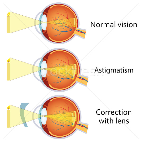Astigmatism corrected by a cylindrical lens. Stock photo © Neokryuger