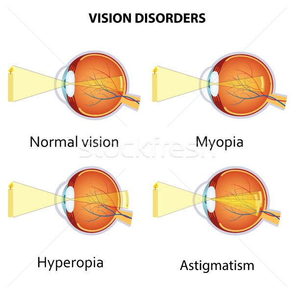 Common vision disorders. Stock photo © Neokryuger