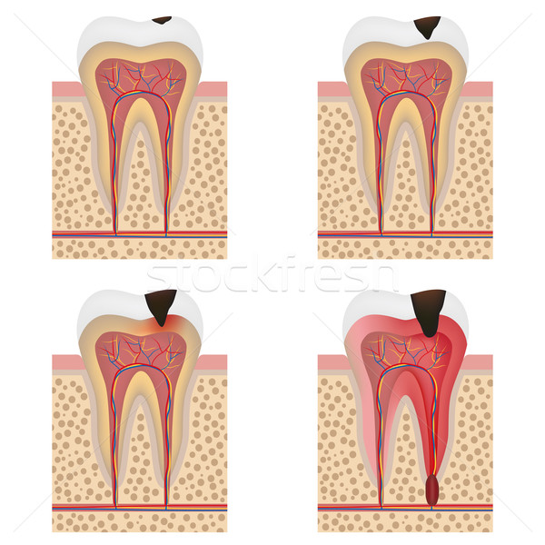 Development of dental caries illustration. Stock photo © Neokryuger